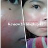 รีวิว กำจัดไฝใต้ตา ง่ายๆด้วยตนเอง โดย ครีมกำจัดไฝ ขี้แมลงวัน กระ ติ่งเนื้อ by lilyshop43 (ผลลัพธ์ขึ้นอยู่กับสภาพผิวส่วนบุคคล)